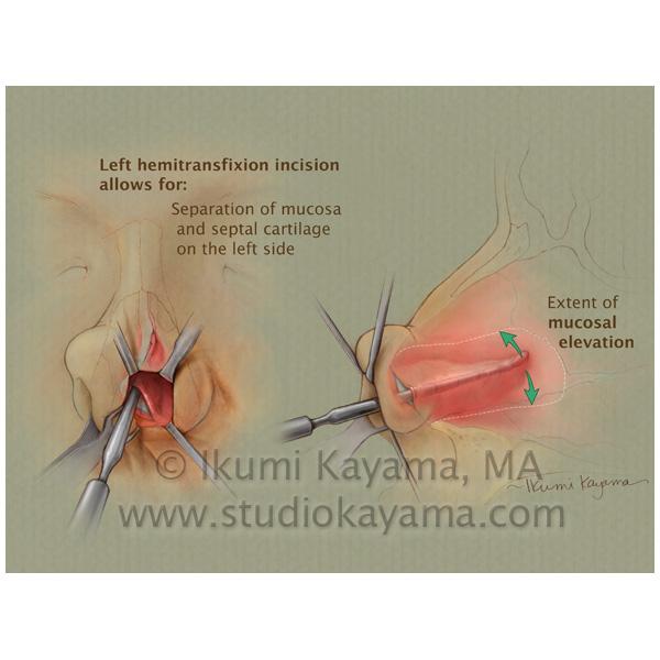medical illustration septoplasty procedure