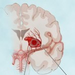 three types of stroke brain ischemic intracerebral aneurysm